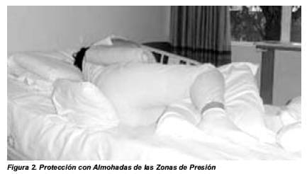 Protección con Almohadas de las Zonas de Presión