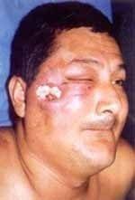 Úlcera malar con piel violácea
