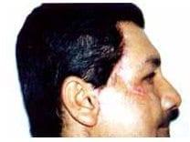 Cuadro de FN de la cara