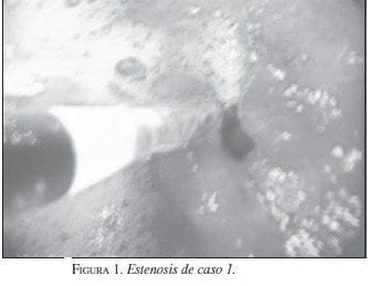 Estenosis de caso 1