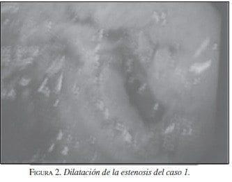 Dilatación de la estenosis del caso 1