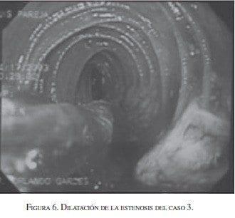 Dilatación de la Estenosis del Caso  3