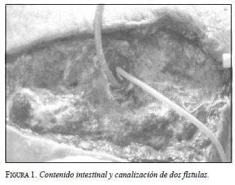 Contenido Intestinal y Canalización de dos Fístulas