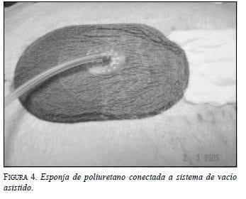 Esponja de Poliuretano conectada a Sistema de Vacío Asistido