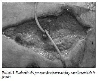 Evolución del Proceso de Cicatrización y Canalización de laFístula