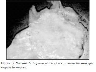 Sección de la Pieza Quirúrgica con Masa Tumoral que respeta la Mucosa