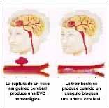 Lesiones hemorrágicas y trombóticas