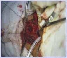 Colocación de tubo en región distal