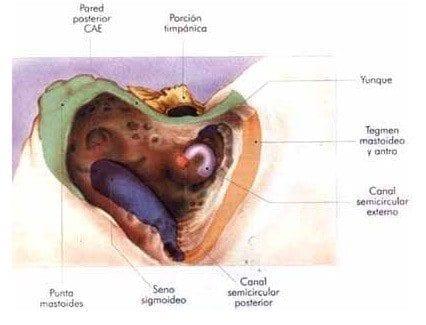 Cavidad de mastoidectomía