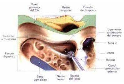 Timpanotomía posterior