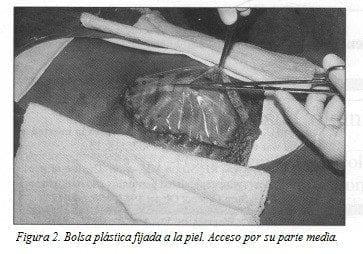 Bolsa Plástica fijada a la pie