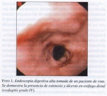 Endoscopia Digestiva alta tomada de un paciente de VIME