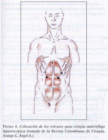 Colocación de los Trócares para Cirugía Antirreflujo Laparoscópica