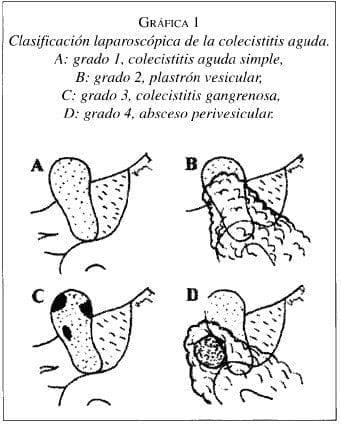 Clasificación Laparoscópica de la Colecistitis Aguda