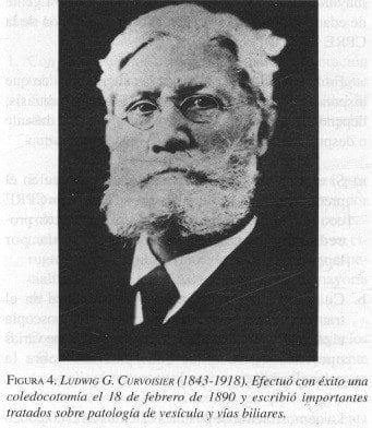 Ludwigg Curvoisier (1843-1918)