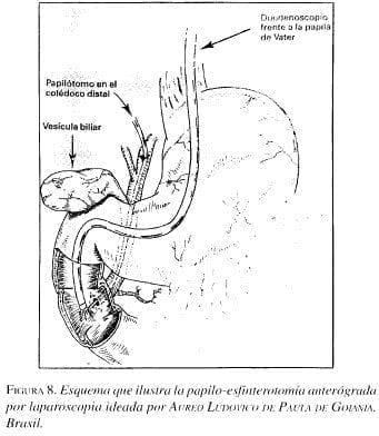 Esquema que ilustra la Papilo-Esfinterotomía