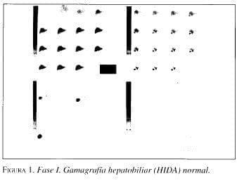 Gamagrafía Hepatobiliar (HlDAJ normal