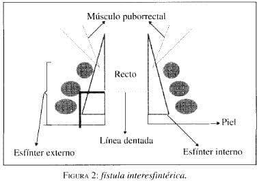 Fístula Interesfintérica