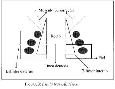 Fístula Trasesfintérica