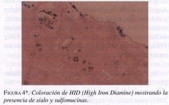Coloración de HID (High Iron Diamine)