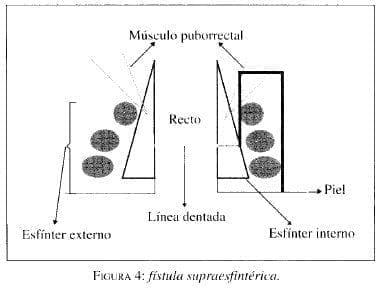 Fístula Supraesfintérica