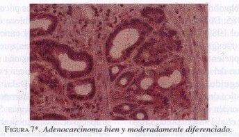 Adenocarcinoma bien y moderadamente diferenciado