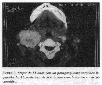 Mujer de 55 años con un Paraganglioma Carotídeo izquierdo