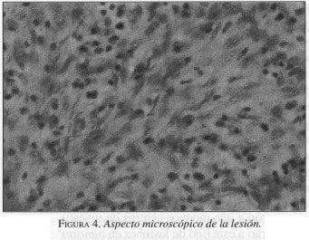 Tumores Gástricos Estromales, Aspecto macroscópico de la lesión