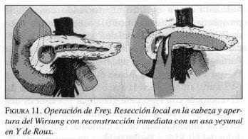Operación de Frey