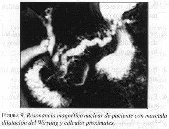Dilatación del Wirsung y Cálculos proximales