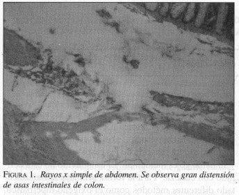 Gran distensión de Asas Intestinales de Colon