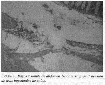 Gran distensión de Asas Intestinales de Colon