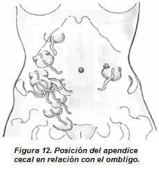 Posición del Apendice Cecal en relación con el Ombligo