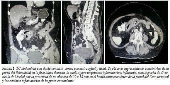 TC Abdominal con doble Contaste, cortes coronal, sagital y axial