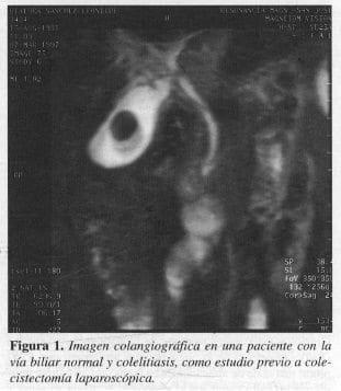 Imagen Colangiográfica en una paciente con la vía Biliar Normal y Colelitiasis