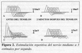 Estimulación Repetitiva del Nervio Mediano