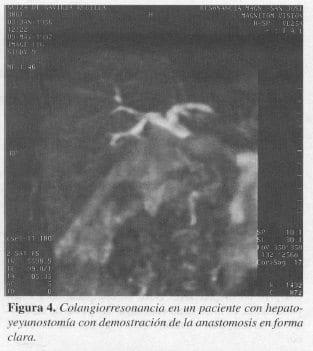 Paciente con Hepatoyeyunostomía con Demostración de la Anastomosis