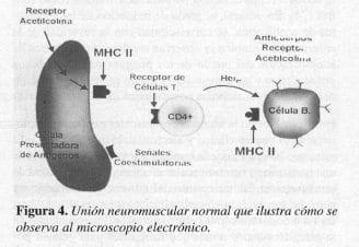 Unión Neuromuscular Normal