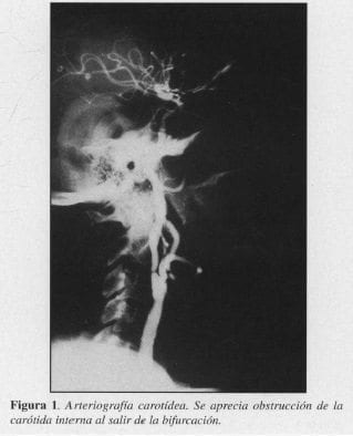 Arteriografía carotídea