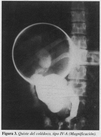 Quiste del colédoco, tipo IV-A (Magnificación)