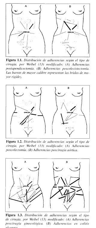 Distribución de adherencias según el tipo de Cirugía
