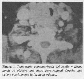 Tomografia computarizada del Cuello y Tórax