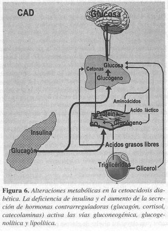Alteraciones Metabólicas en la Cetoacidosis Diabética