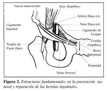 Herniorrafia Preperitoneal: structuras fundamentales en la prevención natural