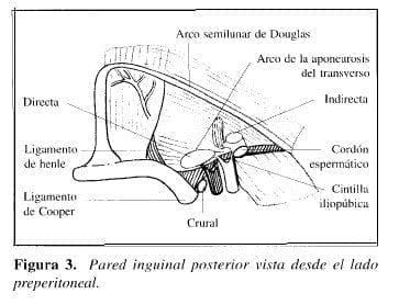 Herniorrafia Preperitoneal: Pared inguinal