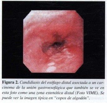 Candidiasis del Esófago Distal asociada a un Carcinoma de la Unión Gastroesofágica