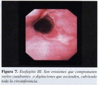 Esofagitis III