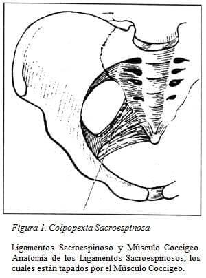 Ligamentos Sacroespinoso y Músculo Coccígeo