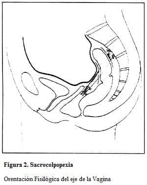 Sacrocolpopexia
