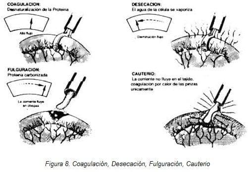 Endocirugía: Coagulación, Desecación, Fulguración, Cauterio